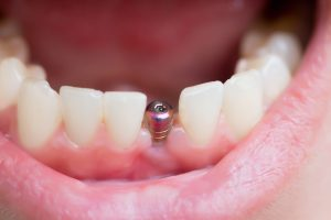 What To Expect If You Need a Dental Bone Graft