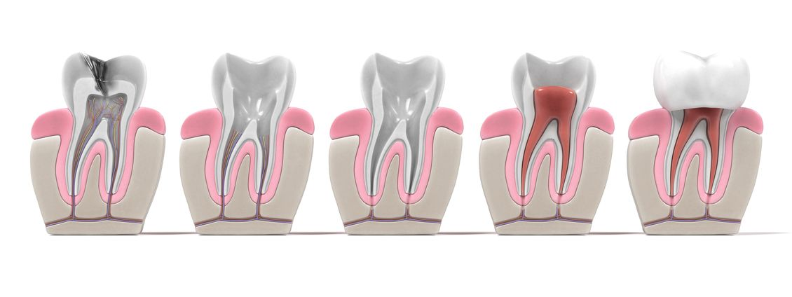 Ocoee Oral Surgery in Cleveland TN offers apicoectomy procedures for patients in which root canals have not been a successful course of treatment.